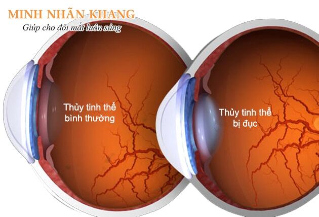 Đục thủy tinh thể nên làm gì để không gây mù lòa?